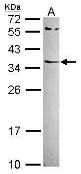 RARRES1 Antibody (PA5-30227) in Western Blot