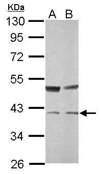 TALDO1 Antibody (PA5-30233)