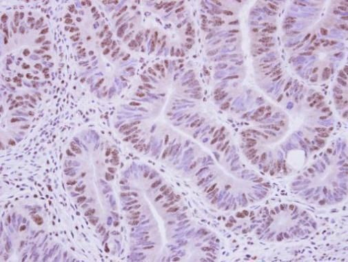 AGFG1 Antibody (PA5-30234) in Immunohistochemistry (Paraffin)