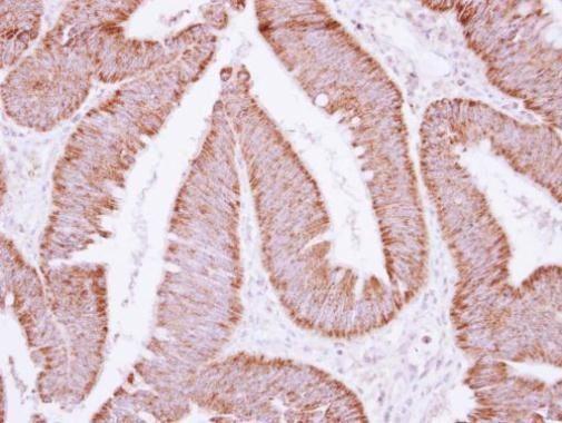 ATP Synthase B1 Antibody (PA5-30236) in Immunohistochemistry (Paraffin)