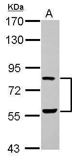 ERF Antibody (PA5-30237) in Western Blot