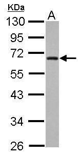 ZNF215 Antibody (PA5-30243)
