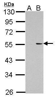 PKNOX1 Antibody (PA5-30244) in Western Blot