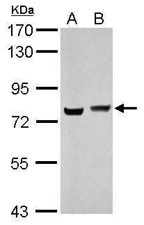 hnRNP M Antibody (PA5-30247) in Western Blot