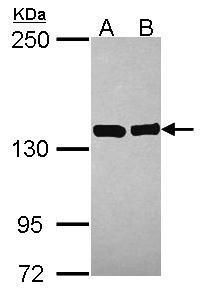 VARS Antibody (PA5-30251) in Western Blot