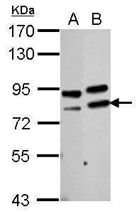 PARN Antibody (PA5-30252) in Western Blot