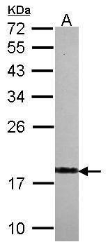 VSNL1 Antibody (PA5-30258) in Western Blot