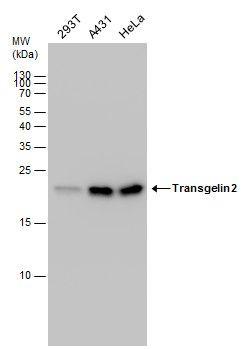TAGLN2 Antibody (PA5-30271) in Western Blot
