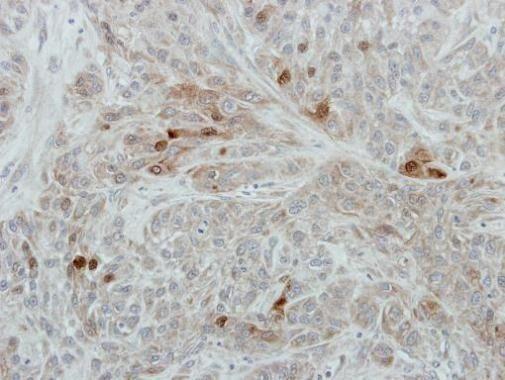 RANBP3 Antibody (PA5-30273)