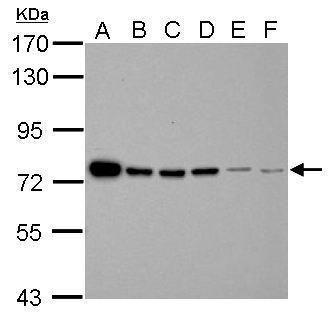 FUBP1 Antibody (PA5-30291) in Western Blot