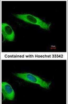eIF2 beta Antibody (PA5-30293)
