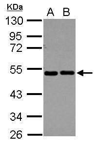 eIF2 beta Antibody (PA5-30293) in Western Blot