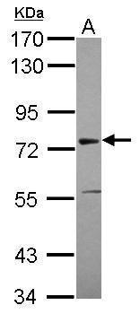 ASH2L Antibody (PA5-30298)