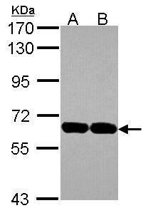 USP14 Antibody (PA5-30300) in Western Blot