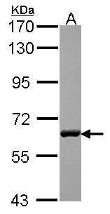 USP14 Antibody (PA5-30301) in Western Blot