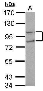 FCP1 Antibody (PA5-30302) in Western Blot