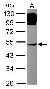 AP4M1 Antibody (PA5-30303) in Western Blot