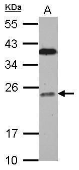 BCL7C Antibody (PA5-30308) in Western Blot