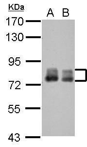 Placental Alkaline Phosphatase Antibody (PA5-30311) in Western Blot