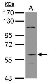 DGCR2 Antibody (PA5-30345) in Western Blot