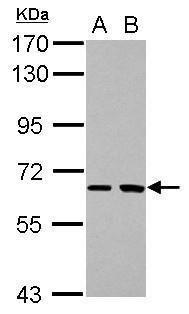 SH2D3A Antibody (PA5-30349) in Western Blot