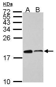 ARPC5 Antibody (PA5-30352) in Western Blot