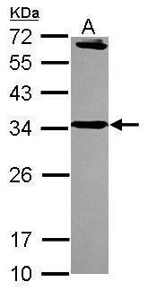 STX6 Antibody (PA5-30366) in Western Blot