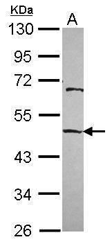 EMP Antibody (PA5-30375) in Western Blot
