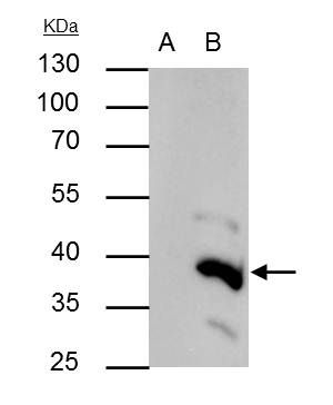 BRAF35 Antibody (PA5-30377) in Immunoprecipitation