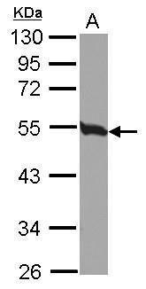 Tubulin beta-2C Antibody (PA5-30379) in Western Blot