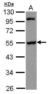 PAIP1 Antibody (PA5-30394) in Western Blot