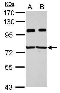 IMP3 Antibody (PA5-30398) in Western Blot