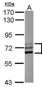 CaMKK beta Antibody (PA5-30399) in Western Blot