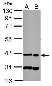 SDCCAG8 Antibody (PA5-30408) in Western Blot