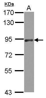 PAPOLA Antibody (PA5-30414) in Western Blot