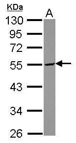 TDE1 Antibody (PA5-30417)
