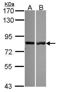 Calpain 11 Antibody (PA5-30432) in Western Blot