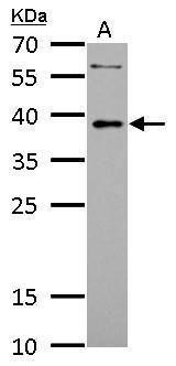 LDB3 Antibody (PA5-30434) in Western Blot
