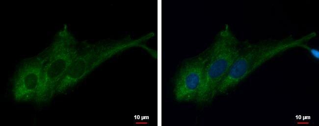 RASA3 Antibody (PA5-30445)
