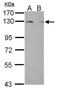 LPIN1 Antibody (PA5-30461)