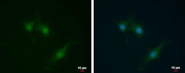 SEC14L2 Antibody (PA5-30473)