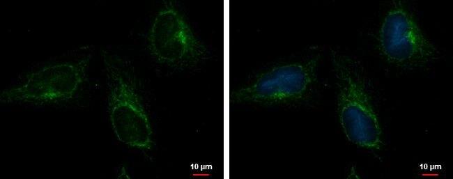 ACOT9 Antibody (PA5-30476) in Immunofluorescence