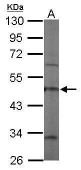 Coronin 3 Antibody (PA5-30479) in Western Blot