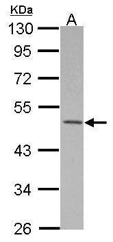 MKRN2 Antibody (PA5-30482) in Western Blot