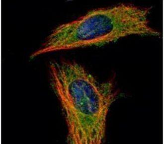 RABGAP1 Antibody (PA5-30484) in Immunofluorescence