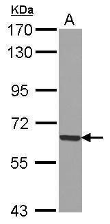 GADD34 Antibody (PA5-30486) in Western Blot