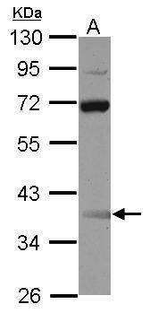 SSBP3 Antibody (PA5-30487)