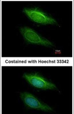 BHMT2 Antibody (PA5-30490) in Immunofluorescence