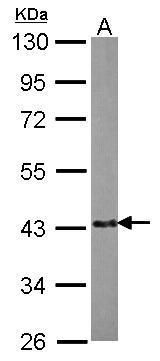 EML2 Antibody (PA5-30494) in Western Blot