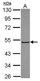 KLHL3 Antibody (PA5-30511) in Western Blot